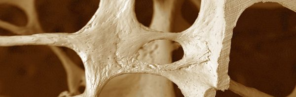 osteoporosi bone team